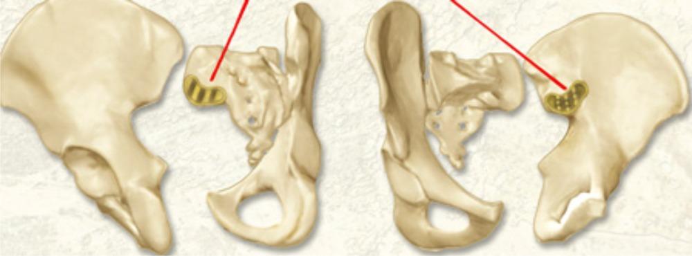 Сочленение крестцовой и подвздошной костей