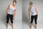 ПИР квадратной мышцы поясницы